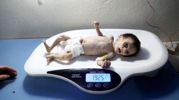 Seher Difda, una bebé sirio, es pesado en una báscula