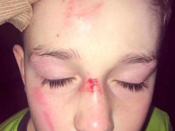 Las heridas que le hicieron al pequeño
