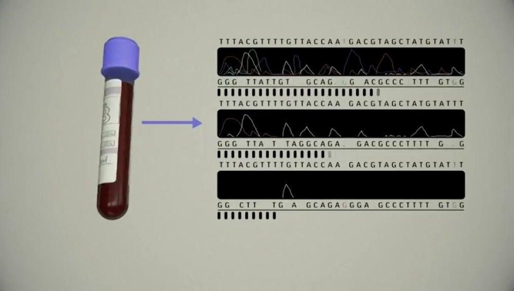 Un test de sangre podría permitir la detección temprana de ocho tipos comunes de cáncer