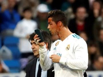 Cristiano Ronaldo, con un móvil para verse una herida