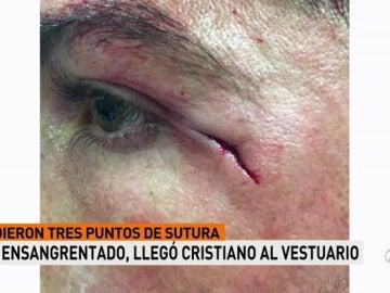 Imagen inédita: la brecha de Cristiano Ronaldo, a medio centímetro del ojo izquierdo