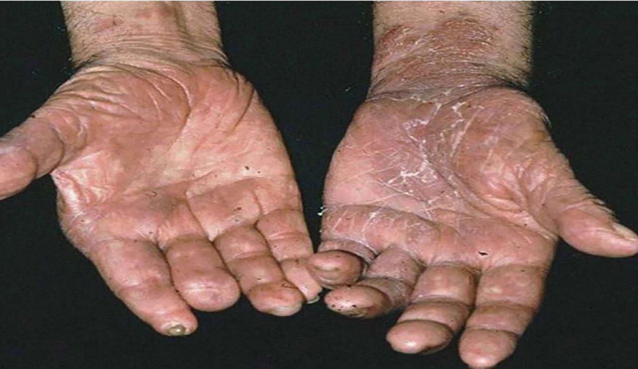Las manos de un enfermo de lepra