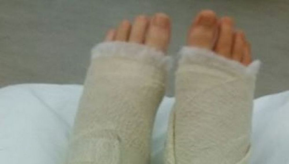 Nikitta se rompió los dos tobillos