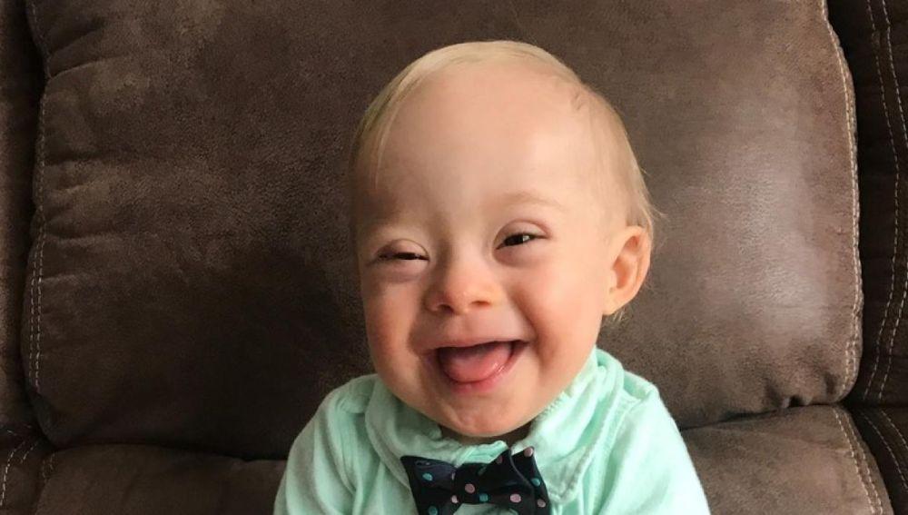 Lucas, el primer bebé con síndrome Down que es imagen de la marca Gerber