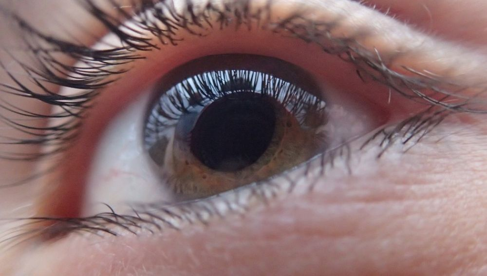 Unas 25.000 personas diagnosticadas de glaucoma podrian sufrir ceguera total
