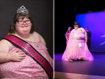 Una adolescente con una extraña patología y 172 kilos de peso gana un concurso de belleza en EEUU