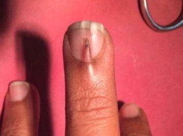 Dedo extraño