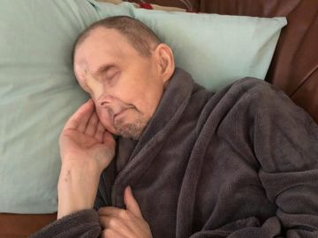 Danny Hunt, tras la extirpación de su ojo derecho y parte de su nariz