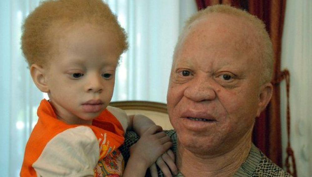 El músico africano lucha por la defensa de los albinos