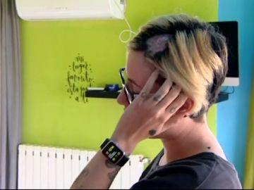 Una mujer sufre quemaduras en la cabeza al teñirse el pelo