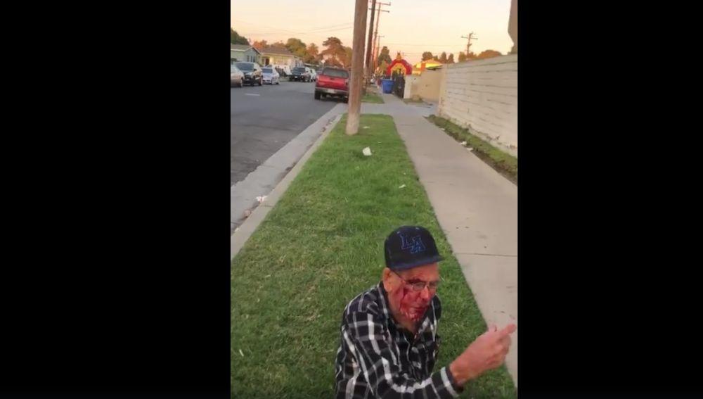El anciano tras la agresión