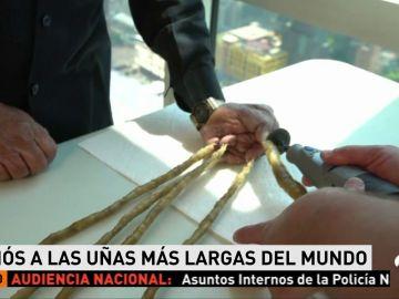 El hombre  con las uñas más largas del mundo se las corta por primera vez después de 66 años
