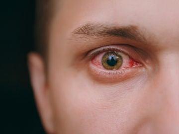 ¿Picor en los ojos?