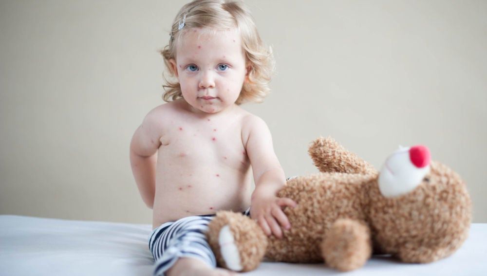 granitos blancos en la espalda de mi bebe