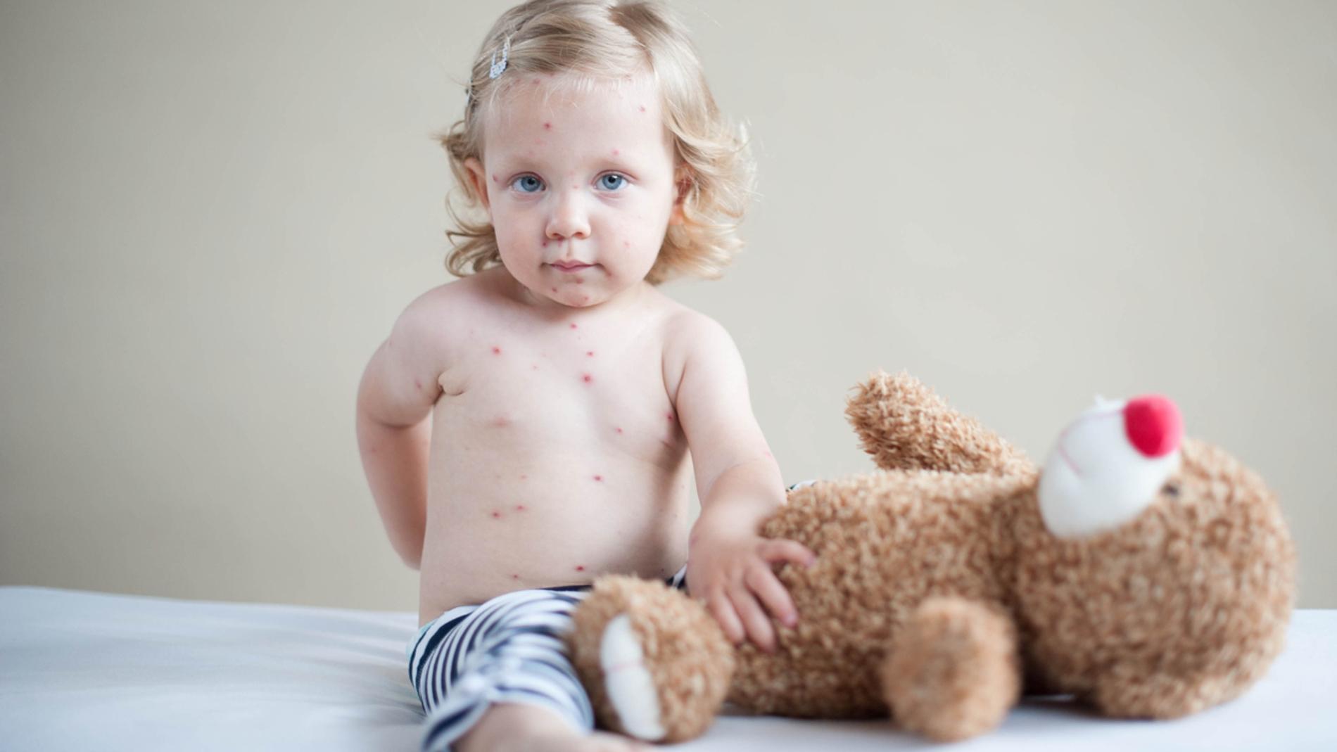 Niño con granitos