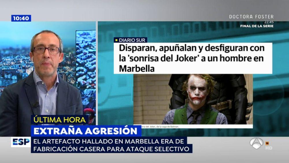 Brutalidad en Marbella: Desfiguran a un británico con 'La sonrisa del Joker' y le disparan en manos y pies