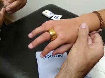 El ingenioso método con el que los bomberos logran sacar un anillo a un niño