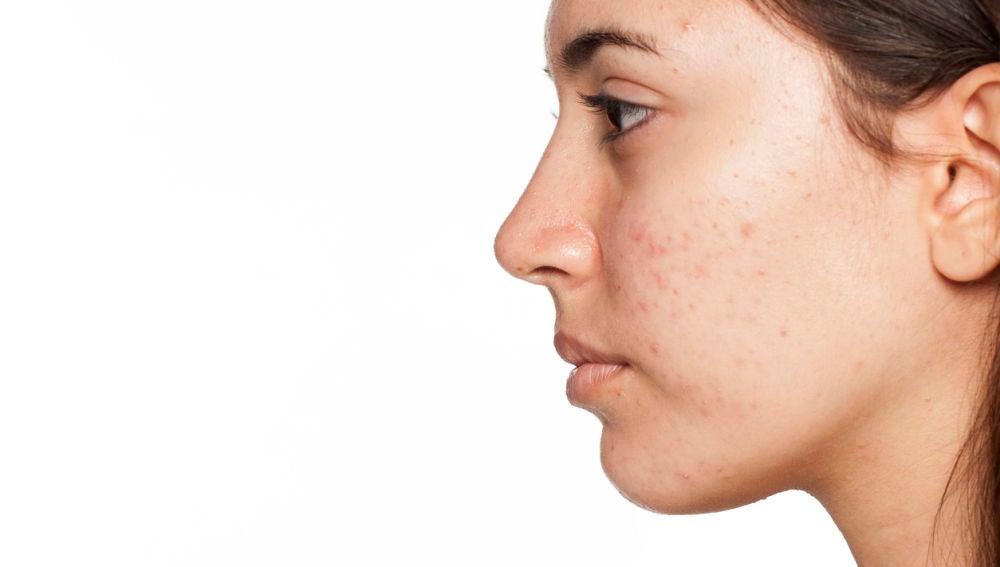 Las marcas que deja el acné