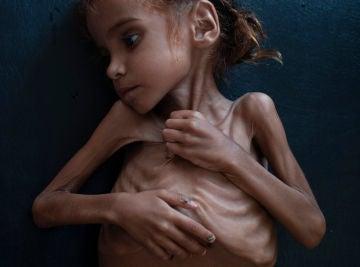 La pequeña Amal Hussain
