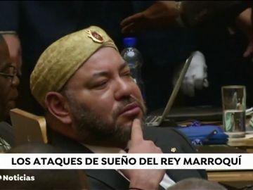 REEMPLAZO Desvelada la enfermedad del rey de Marruecos. Mohamed VI padece sarcoidosis