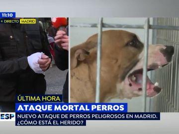 """Un nuevo ataque de un perro peligroso rompe la mano a la víctima: """"He cogido miedo a los perros, aunque la culpa es del dueño"""""""