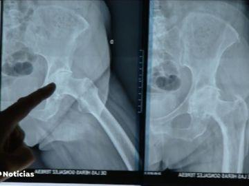 """Sanidad y sociedades científicas califican de """"anecdótica"""" la incidencia de implantes defectuosos"""