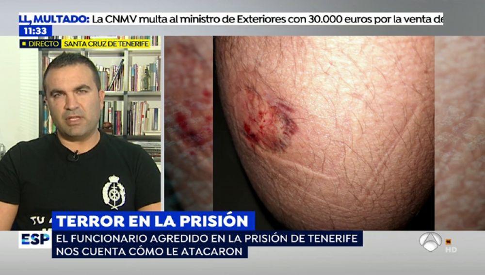 """Víctima de la agresión de un preso: """"Me mordió en el gemelo ejerciendo cada vez más fuerza y era imposible separarle de mi pierna"""""""