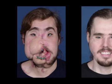 Reconstrucción facial de Cameron Underwood