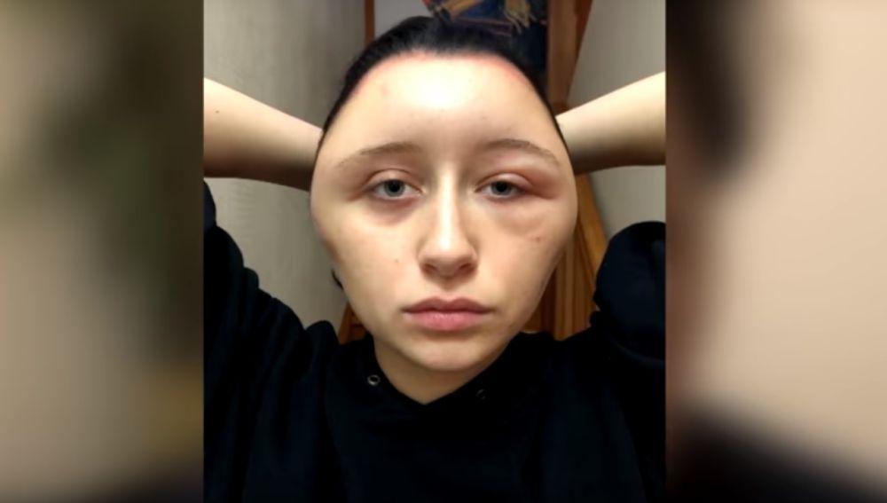 La joven tras sufrir la reacción alérgica