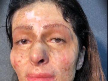 mujer quemada
