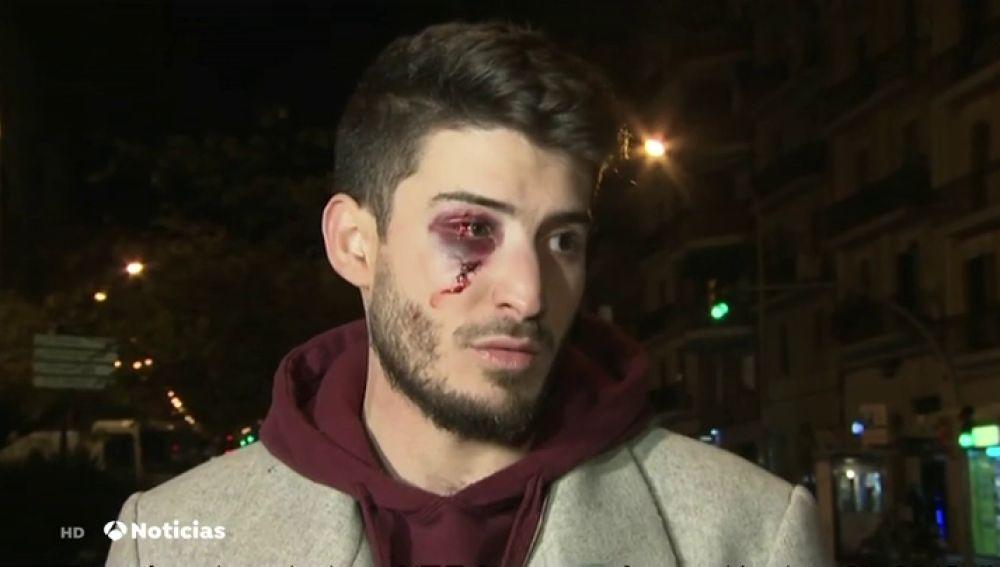 Un joven sufre una brutal agresión homófoba en el metro de Barcelona