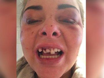 Una de las imágenes que muestran la agresión que sufrió Lois Ashton