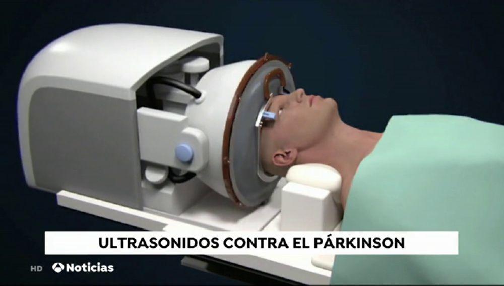 Ultrasonidos contra el parkinson