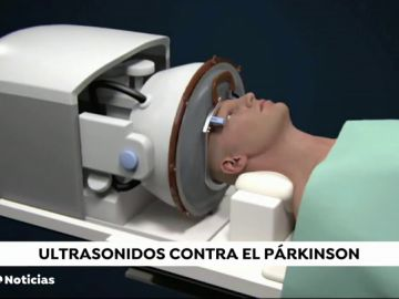 Ultrasonidos contra el parkinson