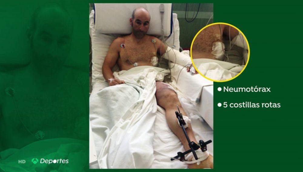 La pelea del montañero Susi para salvar su pie izquierdo