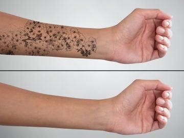 Brazo con y sin tatuaje