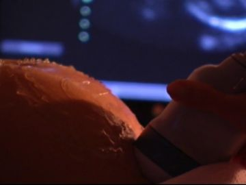 Una mujer se queda estéril tras someterse a 17 abortos en seis años