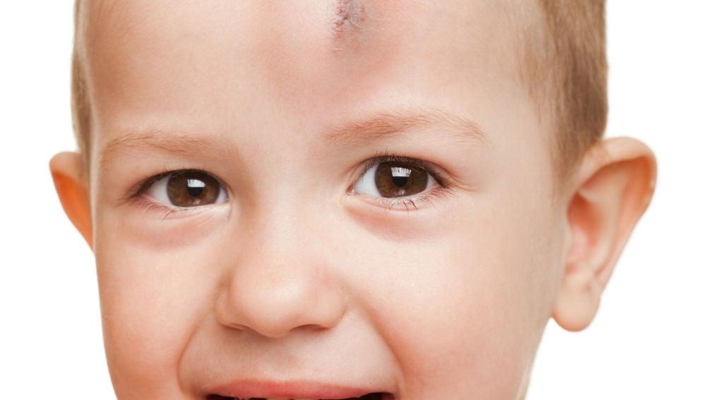 Cómo distinguir una convulsión de un golpe en la cabeza