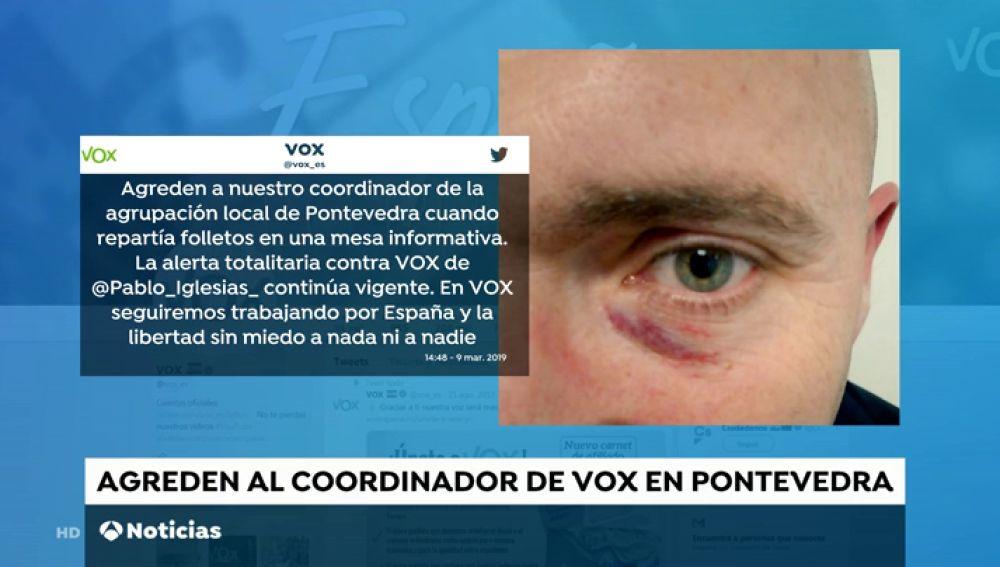REEMPLAZO Vox