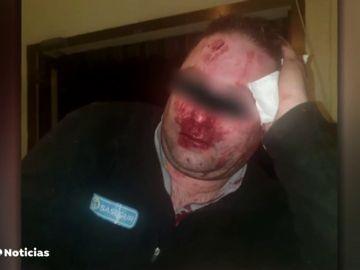 Un grupo de 'menas' agrede y provoca graves lesiones a un vigilante del centro de Hortaleza