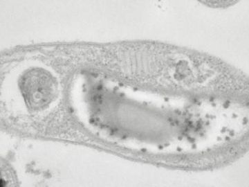 Descubren en Siberia la buscada bacteria capaz de vivir en Marte