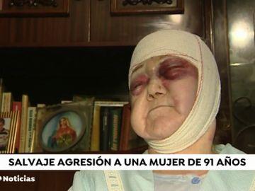 Brutal agresión a una mujer de 91 años en Barcelona