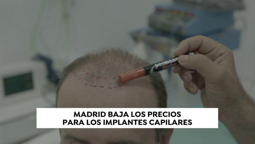 ¿La nueva Estambul? Madrid baja los precios para los implantes capilares