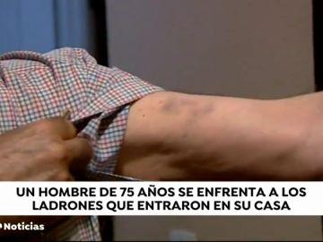 Un hombre de 75 años se enfrenta a los ladrones que entran en su casa
