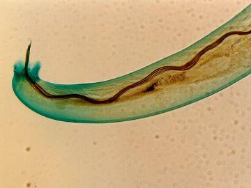 Angiostrongylus cantonensis