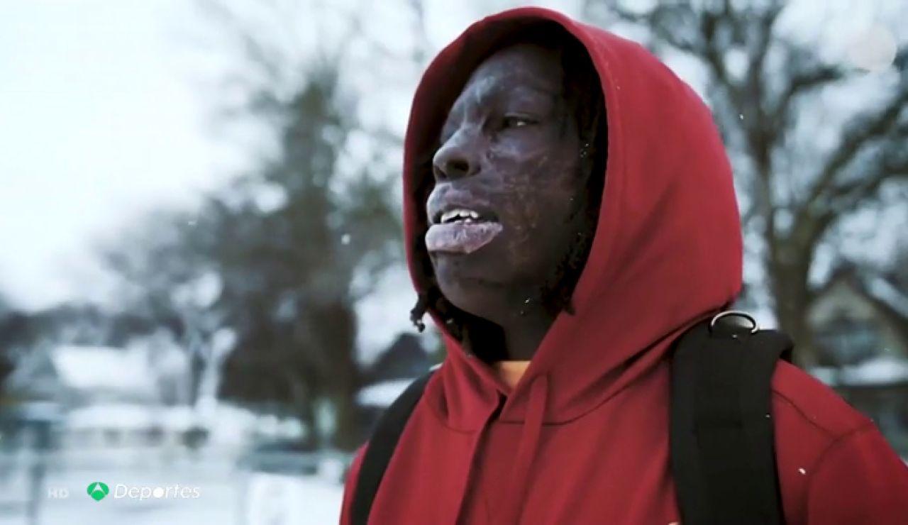 Taquarius Wair, el niño con el cuerpo quemado que sueña con la NFL
