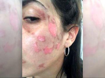 Dos mujeres sufren quemaduras de segundo grado al explotarles un robot de cocina
