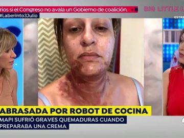 quemaduras_por_robot_cocina