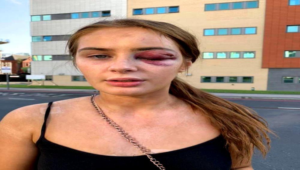 Una joven británica es agredida brutalmente tras rechazar los piropos de su agresor