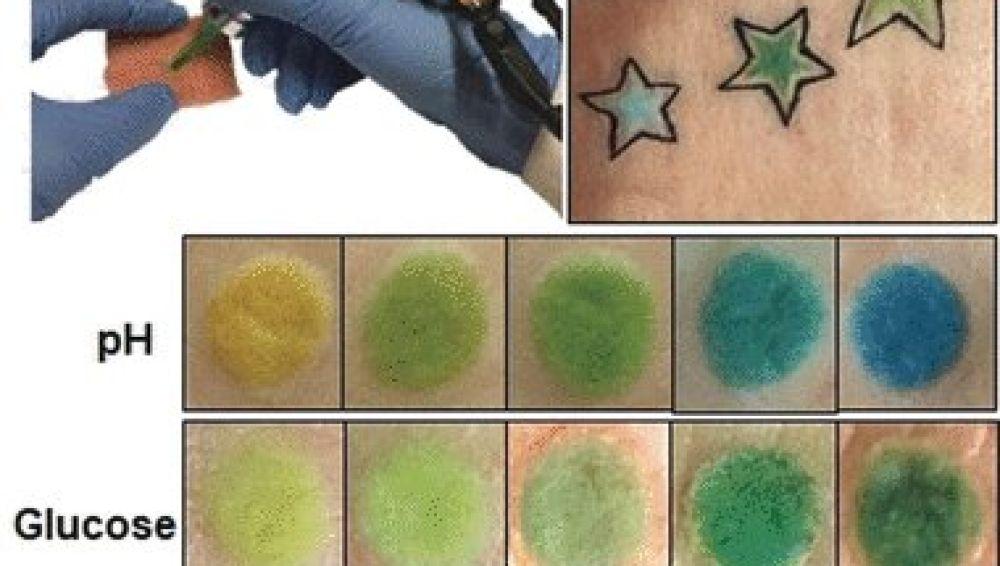 tatuaje infectado sintomas de diabetes